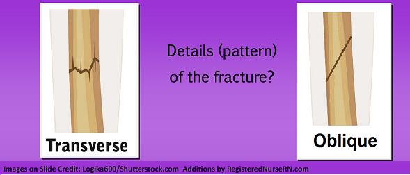 bone fracture types, transverse, oblique, nursing, nclex