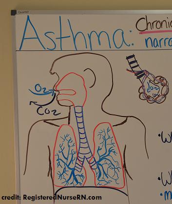 asthma, nclex, nursing, interventions, pathophysiology