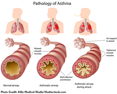 asthma, nclex, review, nursing, interventions