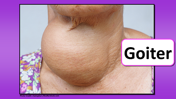 goiter, head to toe assessment