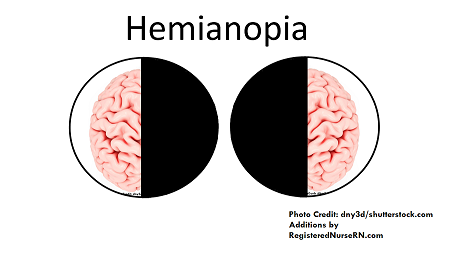 hemianopsia, hemianopia, stroke