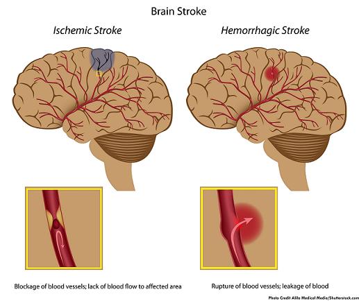 ischemic, hemorrhagic, stroke, nclex, nursing interventions