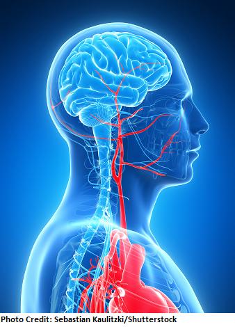 blood supply to brain, stroke, nclex, nursing