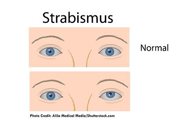 myasthenia gravis, strabismus, double vision