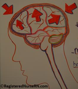 increased intracranial pressure, nursing, nclex, interventions