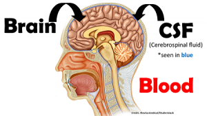 Increased Intracranial Pressure (ICP) NCLEX Review
