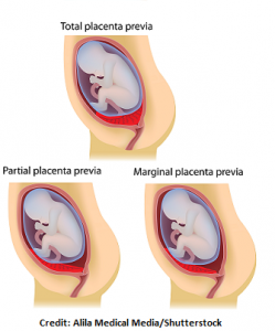 placenta previa types, marginal, total, partial, nursing, nclex