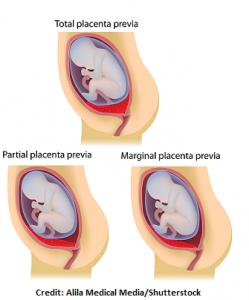 placenta previa types, marginal, total, partial, nursing, nclex