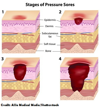 pressure ulcer stages, nursing, nclex