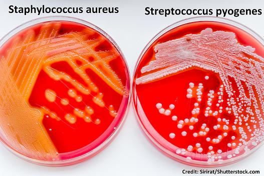 impetigo, bacteria, Staphylococcus aureus, Streptococcus pyogenes