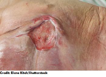 stage 3 pressure ulcer, pressure injuries, nursing, nclex