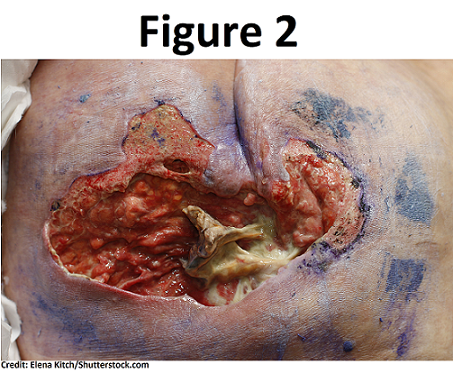 pressure ulcer, injuries, nclex, questions, nursing