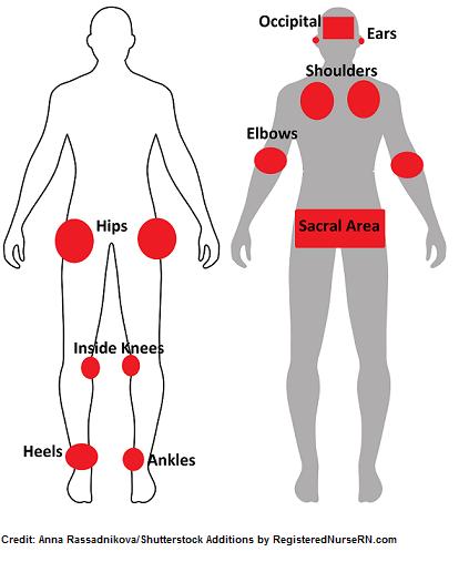 pressure injuries, sites, locations, nursing, nclex
