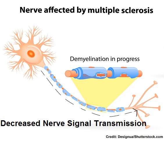 ms, multiple sclerosis, pathophysiology, nclex nursing