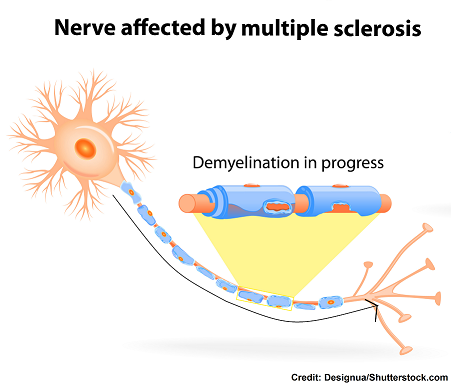 multiple sclerosis, nclex, questions, nursing, interventions