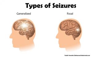 seizures, epilepsy, nclex, nursing, quiz