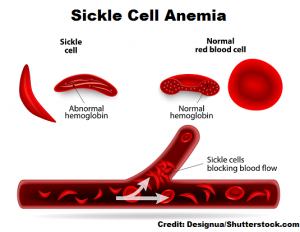 hesi rn case study sickle cell anemia
