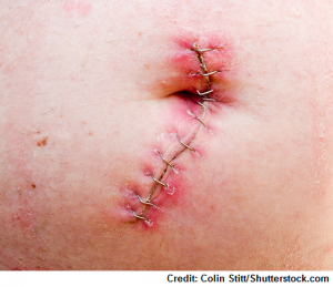 surgical staples, infected, wound