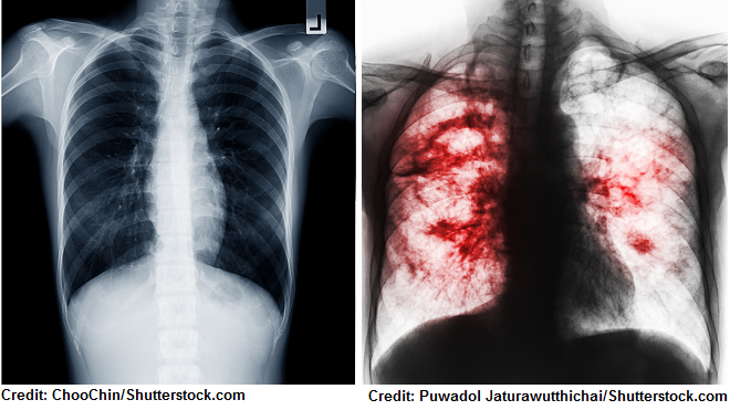 chest x-ray tb, tuberculosis, nursing, nclex