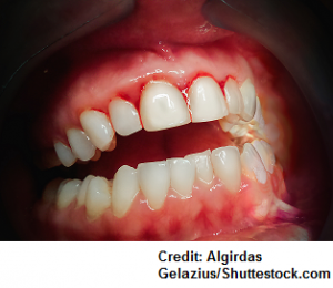 phenytoin, gum gingival hyperplasia, nursing