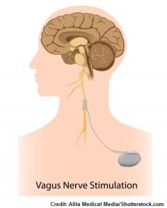 vagus nerve stimulator, seizures, epilepsy