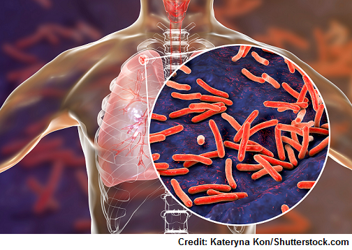 Tuberculosis NCLEX Review