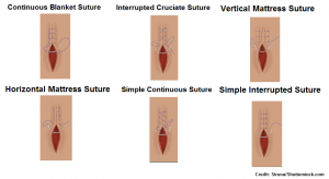 suture patterns, nursing, simple interrupted, continuous blanket, cruciate, vertical mattress, horizontal mattress