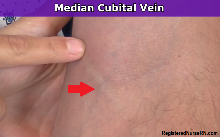 median cubital vein, ivs, drawing blood, nursing