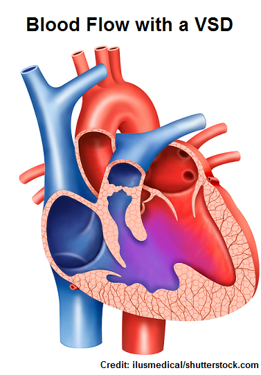 vsd, ventricular septal defect, nclex, nursing, interventions