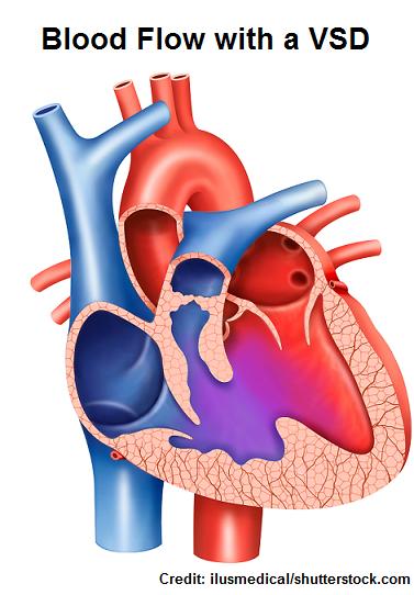 Боли в сердце при ВСД. Как отличить давящую боль в сердце ...
