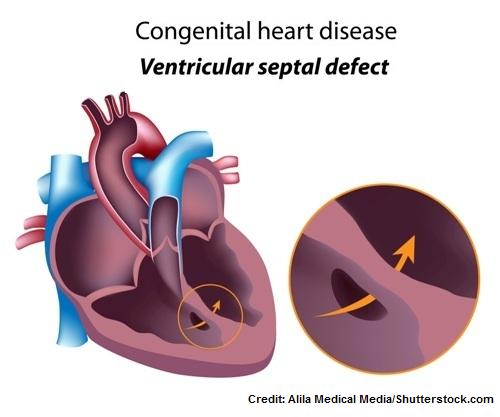 ventricular septal defect, quiz, nclex, vsd, congenital heart defects disease