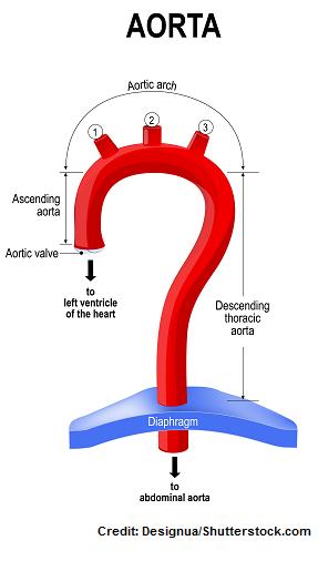 coa, coarctation aorta, nclex, nursing, congenital heart defects