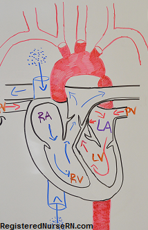 coarctation aorta, nursing, nclex