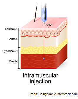 intramuscular injection, 90' degree, deltoid