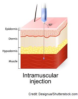 intramuscular injection, 90' degree, deltoid