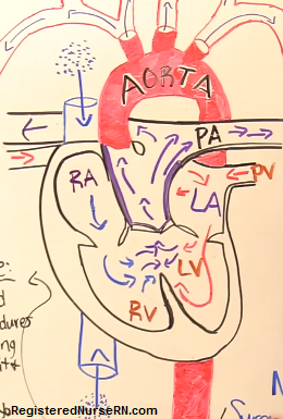 truncus arteriosus, nclex, nursing, congenital heart defects