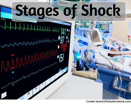 stage of shock, nclex, nursing, initial, progressive, compensatory, refractory, cardiogenic, septic, neurogenic