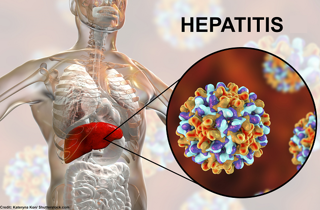 hepatitis, viral, a, b, c, d, e, nursing interventions, nclex
