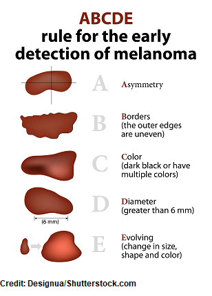 abcde, melanoma, skin cancer types, nursing nclex