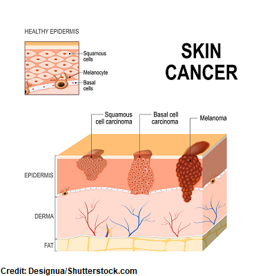 basal cell, squamous, melanoma, skin cancer types, nursing nclex