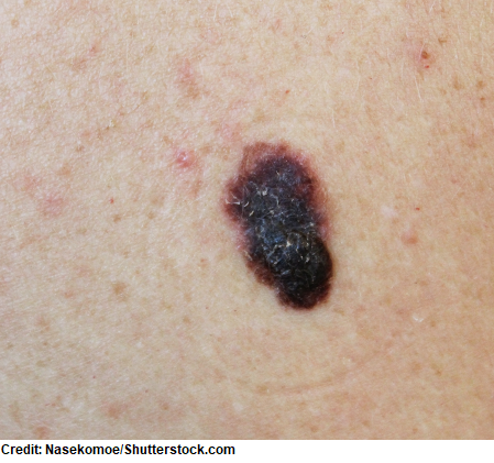 melanoma, skin cancer types, nursing nclex