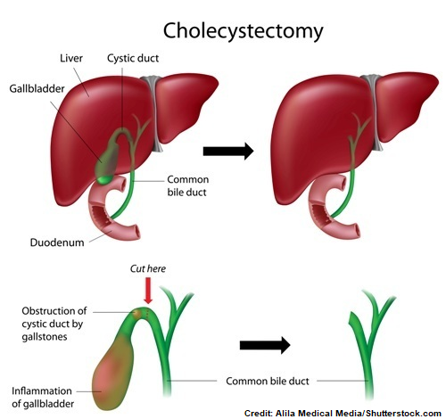 cholecystitis nursing nclex