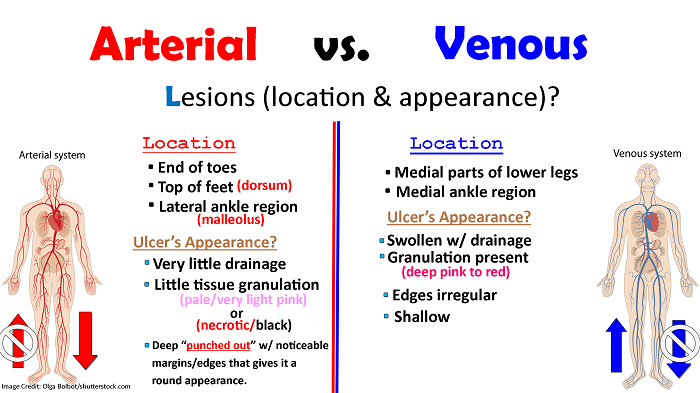 pvd, pad, arterial, venous, disease, peripheral arterial venous disease
