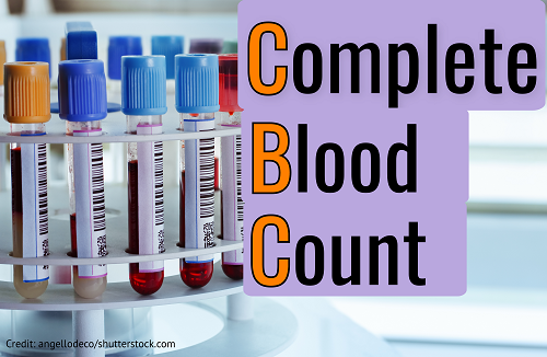 complete blood count, cbc, hematology, nclex, nursing, quiz, questions