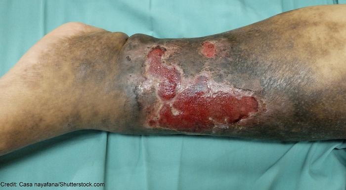 venous stasis ulcer - 3 kez sağ ayağımdan DVT ameliyatı oldum. Engelli raporu alabilir miyim?