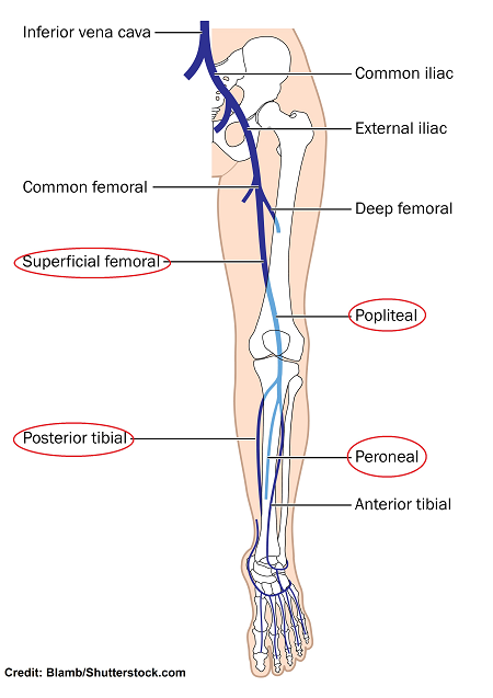 veins in the leg, dvt, deep vein thrombosis, blood clots