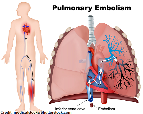 pulmonary embolism, pe, dvt, deep vein thrombosis