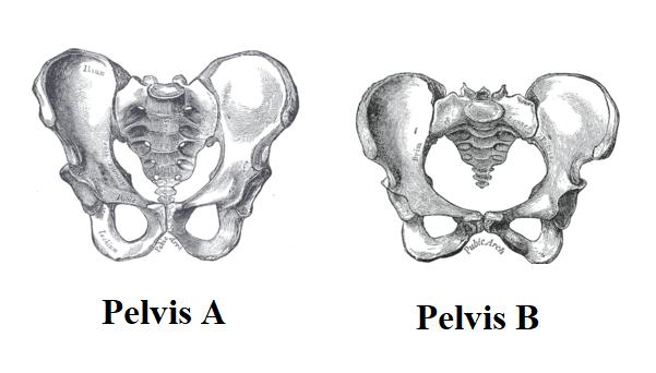 Female vs. Male Pelvis Quiz
