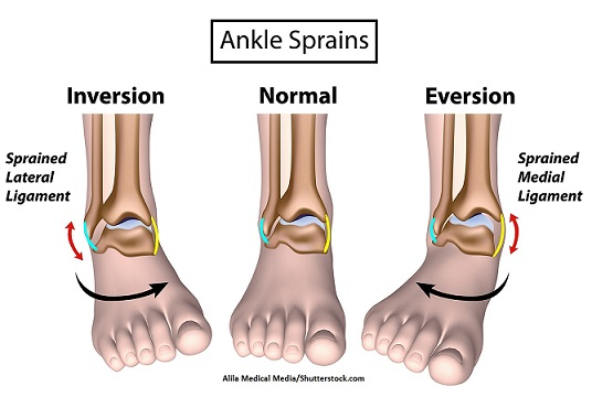 inversion, eversion, ankle sprain, body movement terms