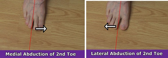 lateral abduction toe, medial abduction toe, anatomy